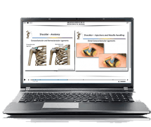 Laptop-with-images-of-shoulder-anatomy-and-injection